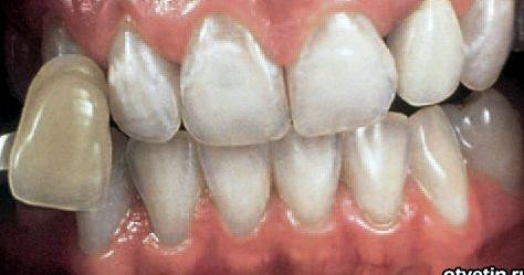 Как отбелить зубы содой и перекисью водорода рецепт