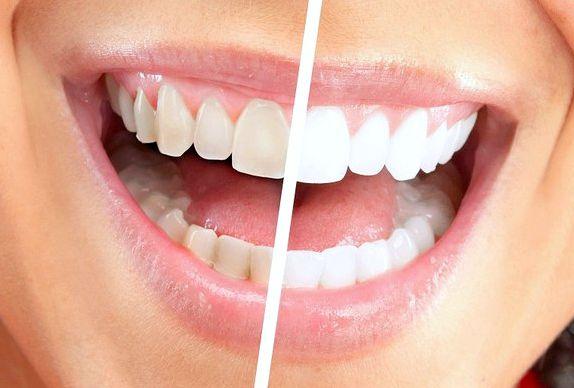 Отбеливание зубов рецепт в домашних условиях
